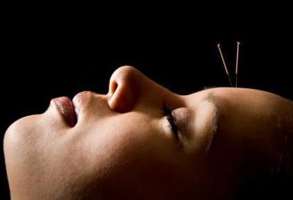 acupunctura-001