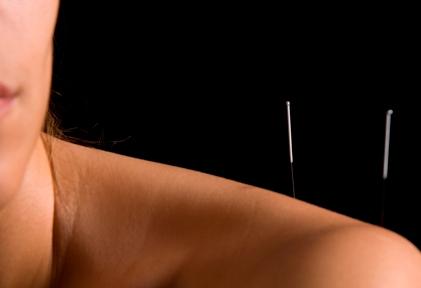 acupunctura-002