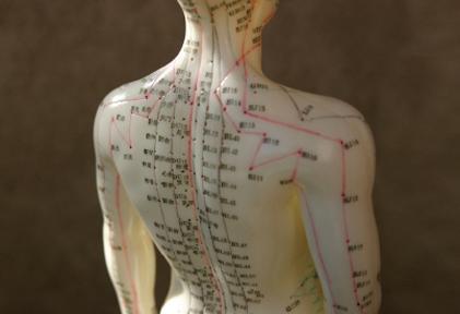 acupunctura-003